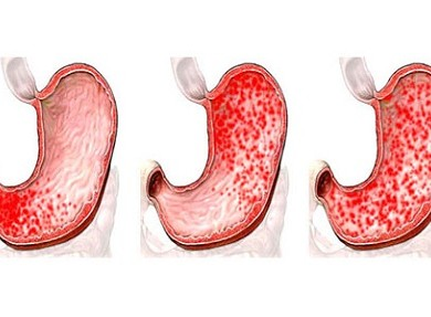 Хронический гастрит желудка по наследству