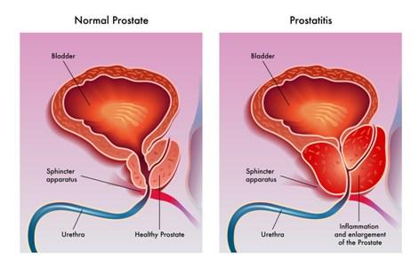 A prosztatitis oka a férfiaknál A prosztatitisből való elhelyezése