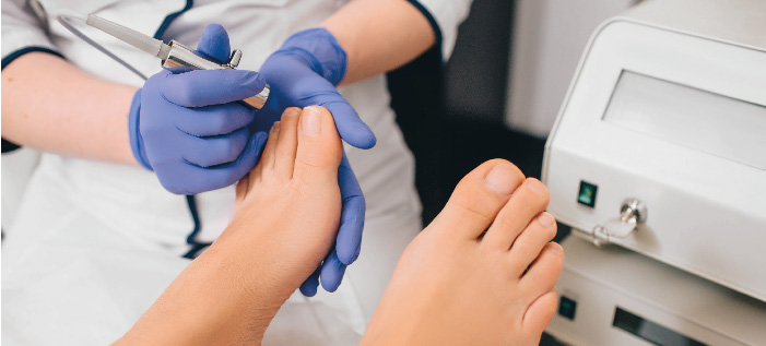 Laser treatment for onychomycosis in Kyiv